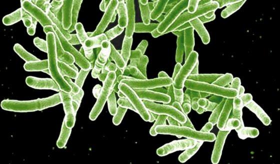 Elektronemikroskopische Aufnahme des Mycobacterium tuberculosis /dpa