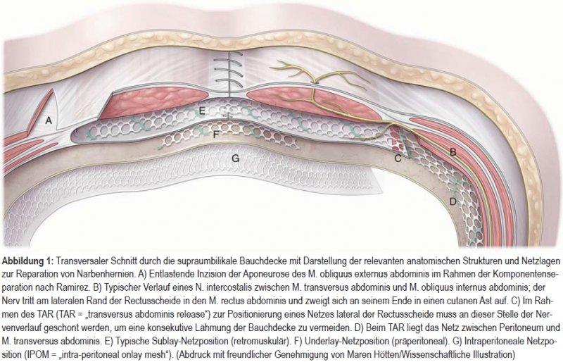 Behandlung von Narbenhernien
