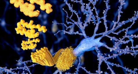 Donanemab: Antikörper beseitigt Beta-Amyloide und verlangsamt Demenz...