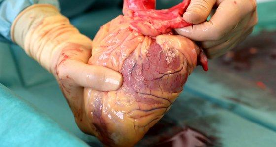 Niederländer werden automatisch Organspender